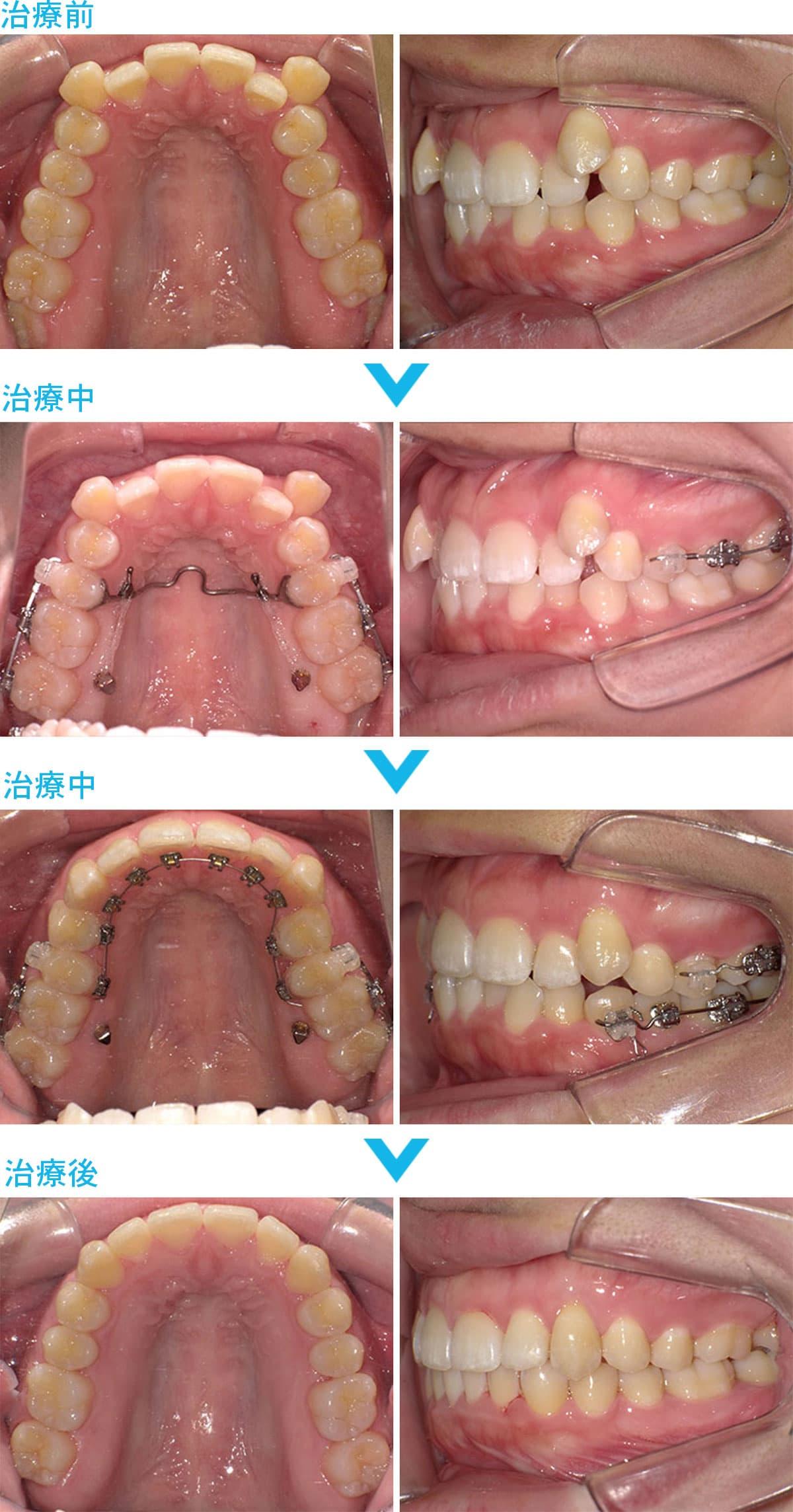 非抜歯の症例治療の比較