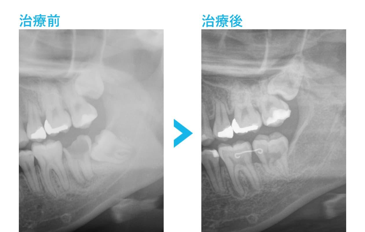 ブリッジ・インプラント・入れ歯を避けた治療の比較