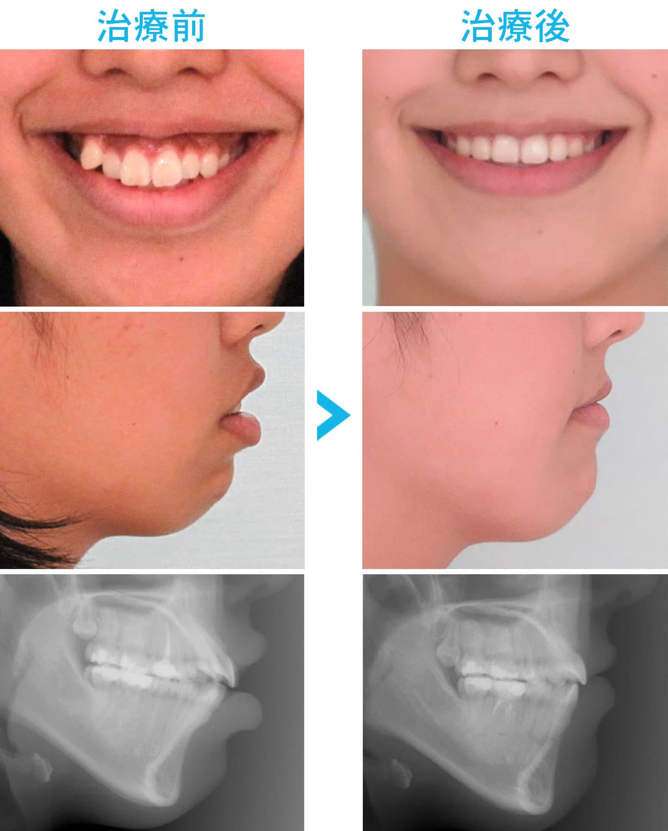 歯科矯正用アンカースクリューによる治療前と治療後の比較