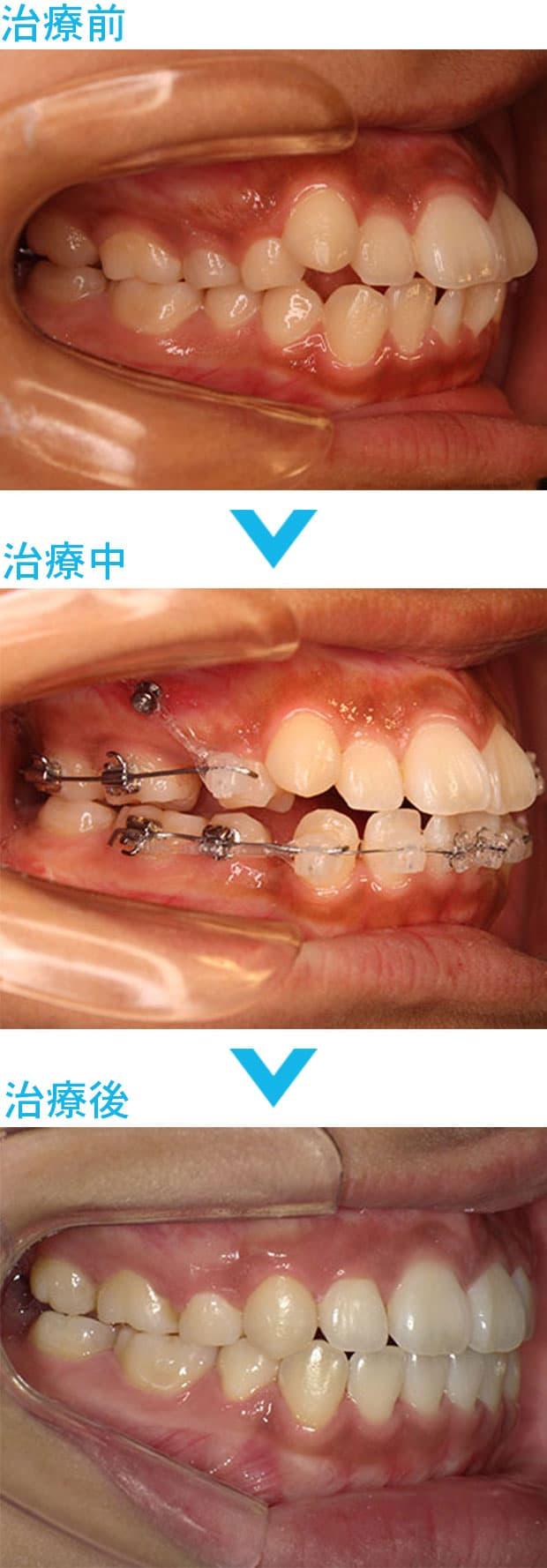 歯科矯正用アンカースクリューによる治療の経過